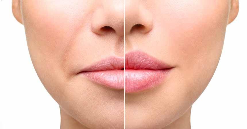 Merdiven altı dudak dolgusu mağdur ediyor