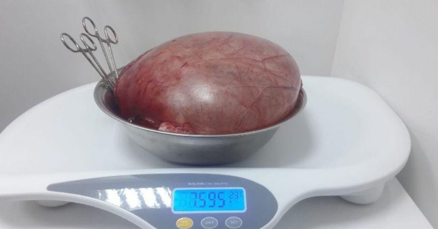 Karnından 7,5 kilo kist çıktı