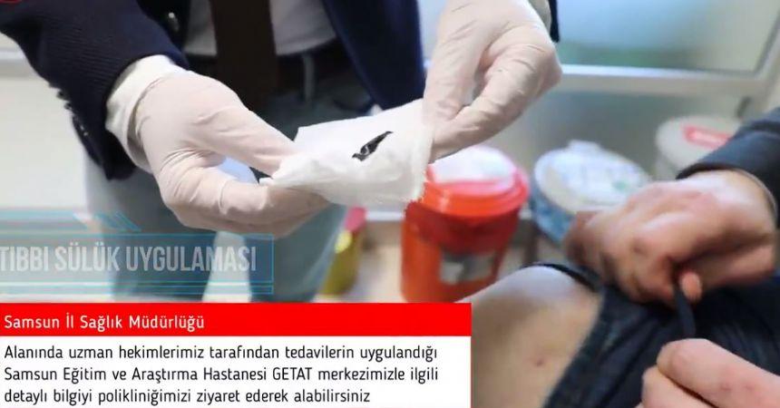 Araştırma Hastanesi'ne sülük ve hacamat tedavisi