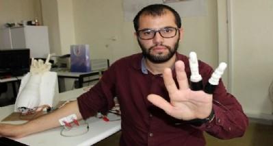 Kendine protez parmak yaptı